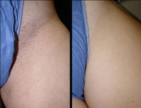 Laser Hair Removal Skinrn Aesthetics