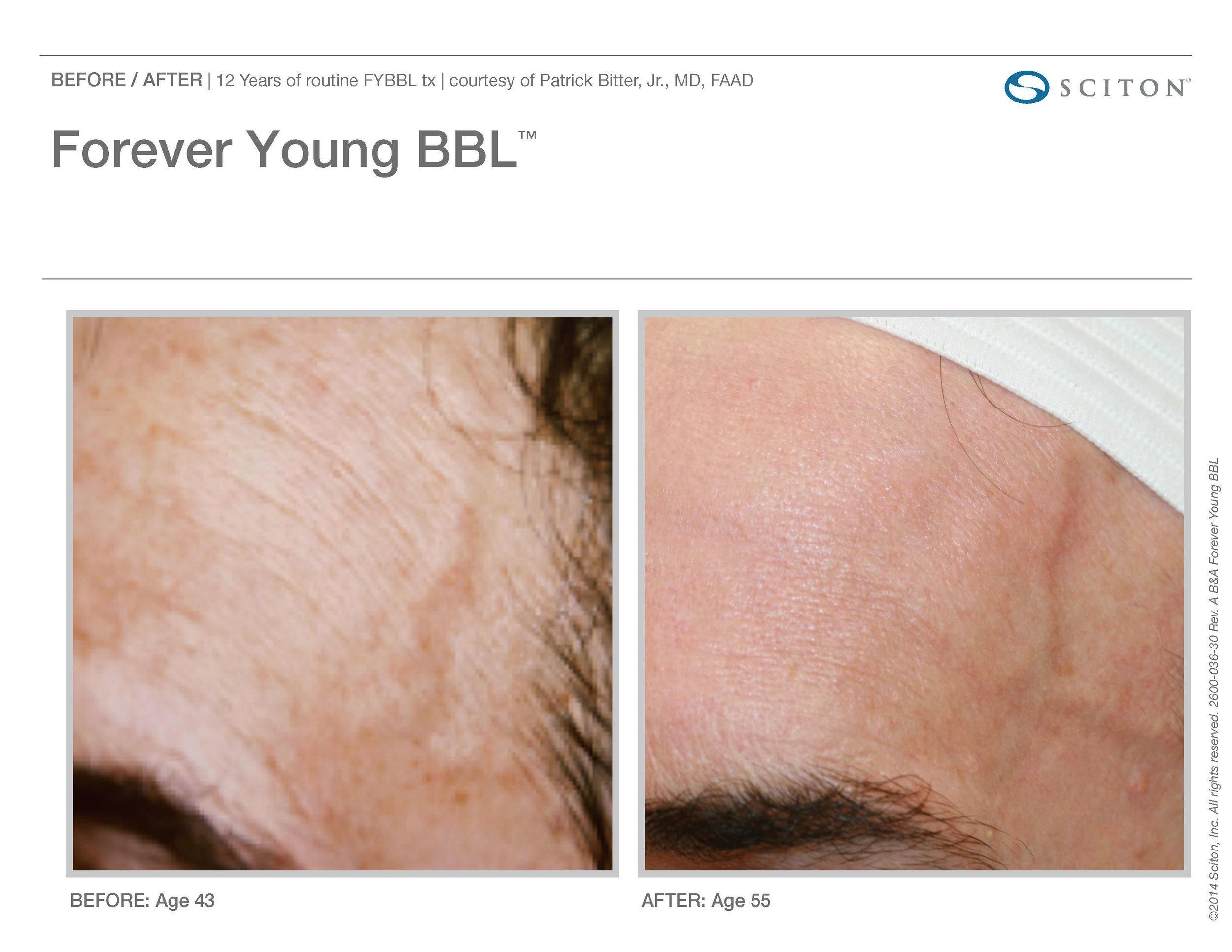 FYBBL B&A Nov'17_Page_1.jpg