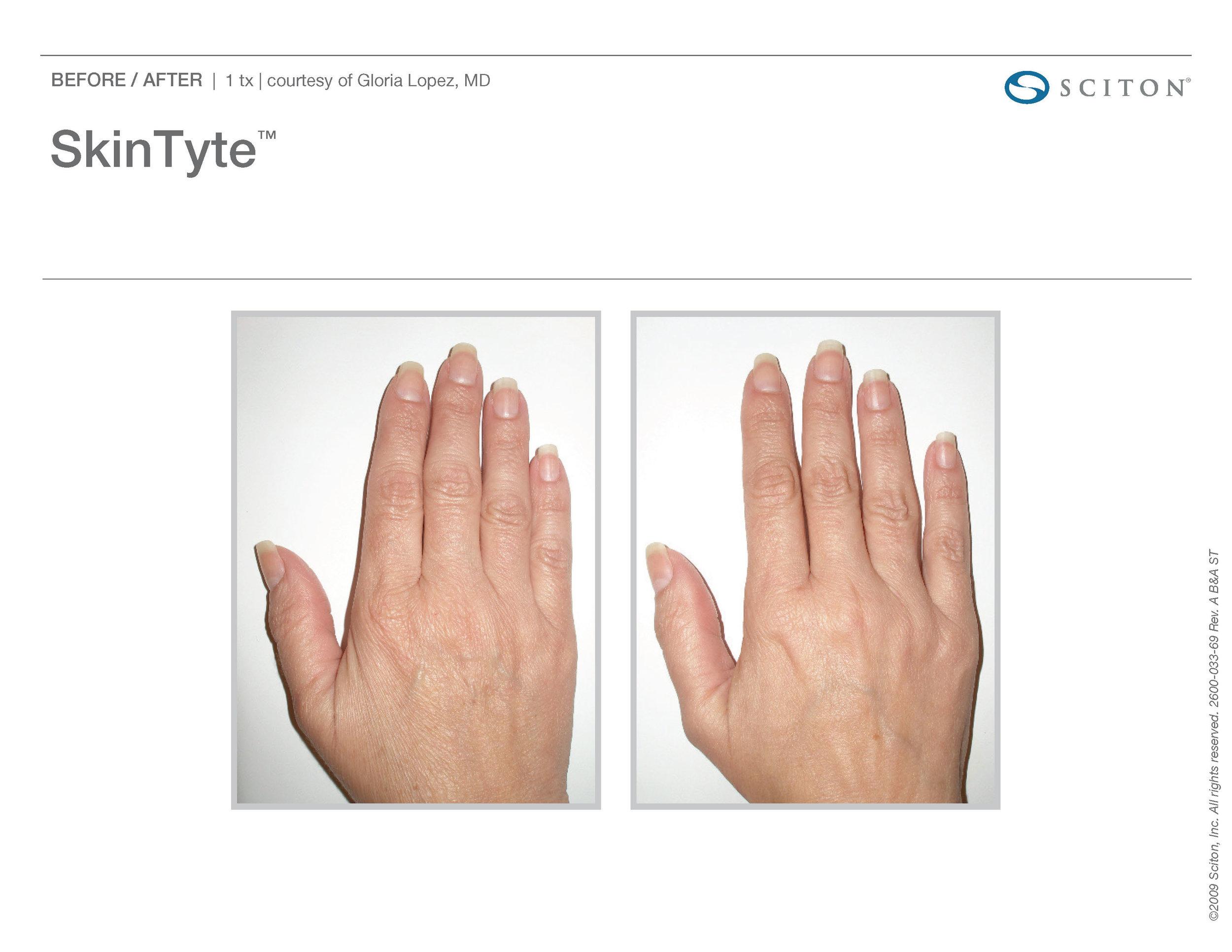 SkinTyte B&A Nov'17_Page_04.jpg