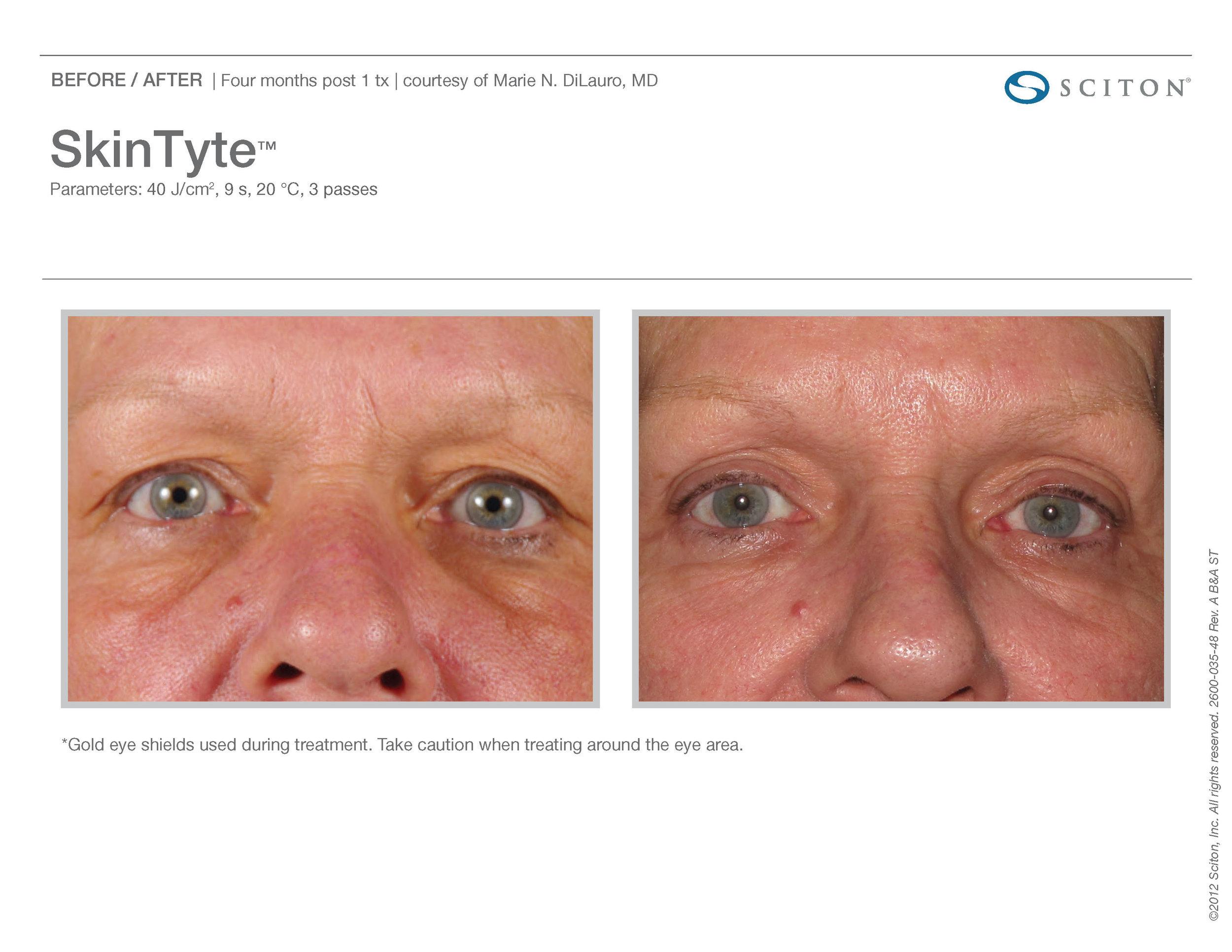 SkinTyte B&A Nov'17_Page_10.jpg