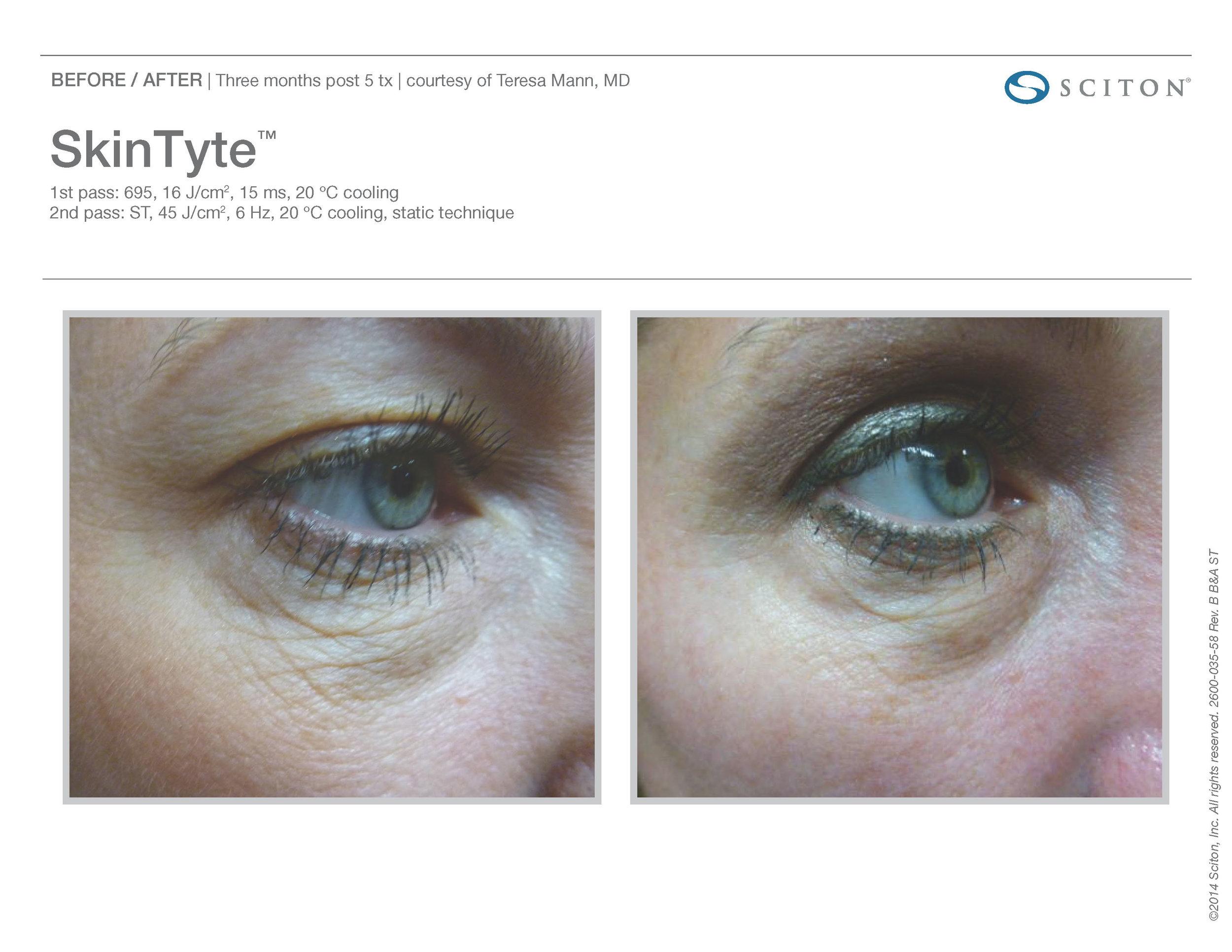 SkinTyte B&A Nov'17_Page_11.jpg
