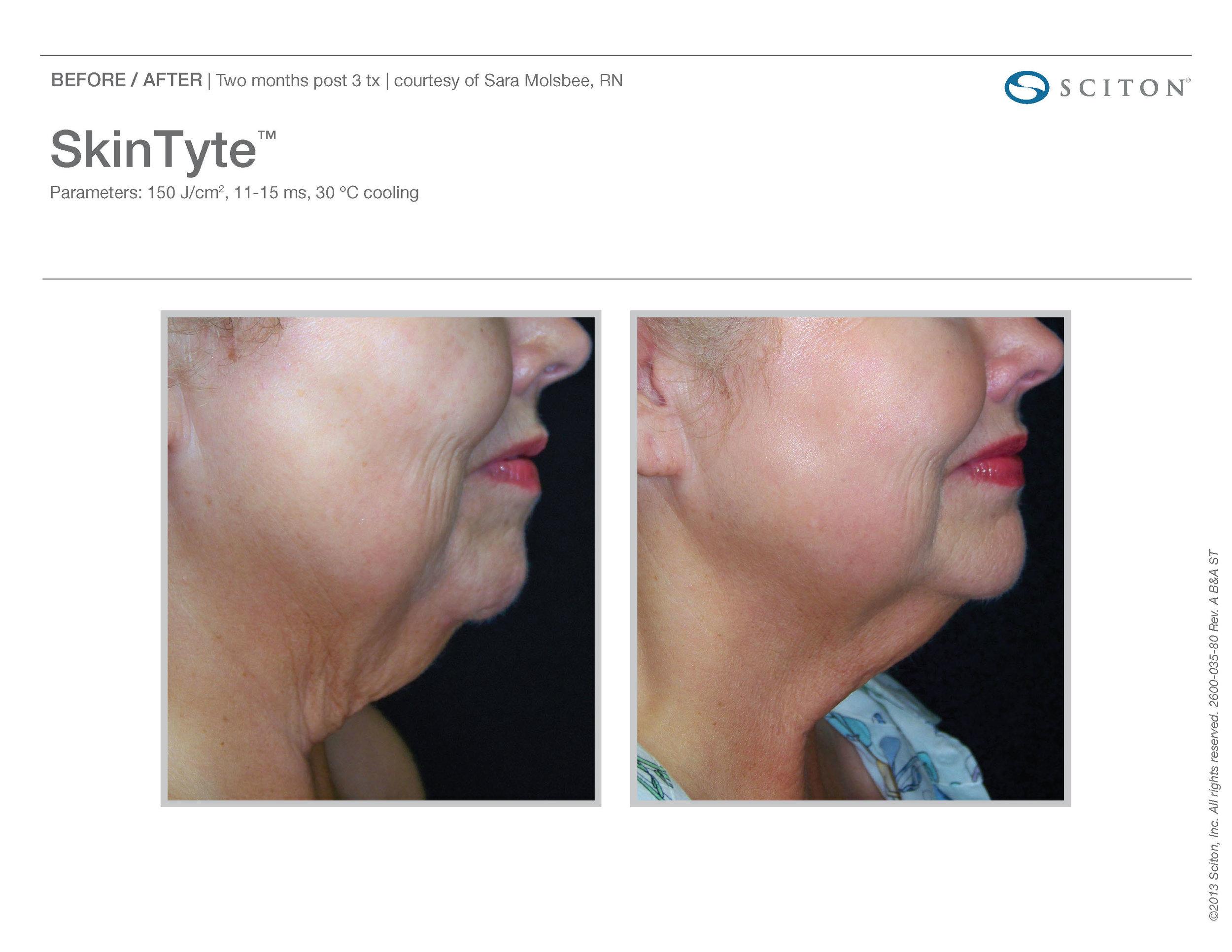 SkinTyte B&A Nov'17_Page_12.jpg