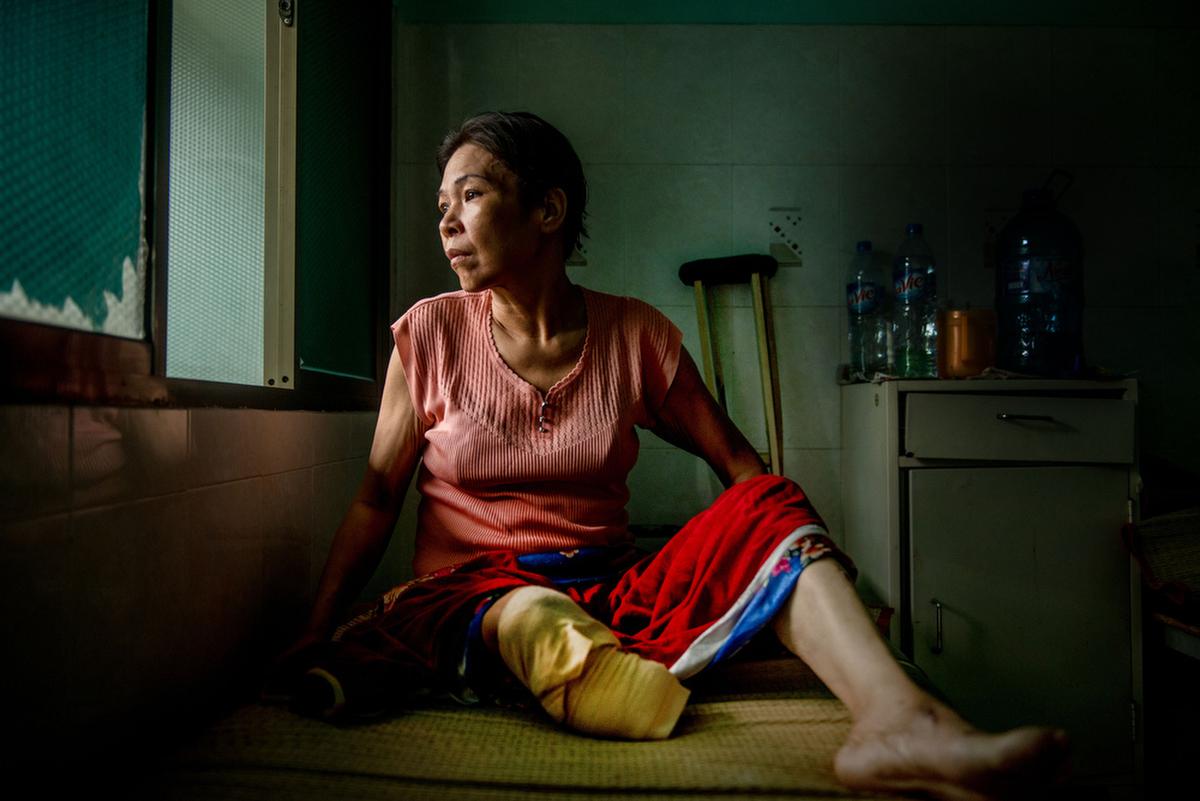 diabetic woman vietnam.JPG