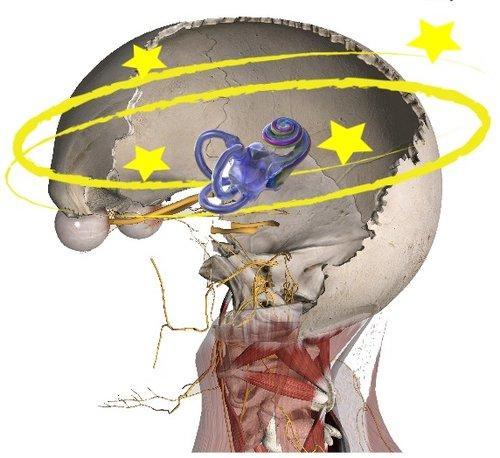 Cervicogenic Dizziness, Cervical Vertigo, Dizziness Cervical Spine