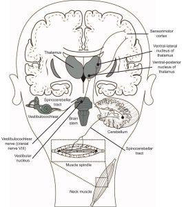 Cervicogenic Dizziness, Cervical Vertigo, Dizziness Cervical Spine, Physiotherapy, Physical Therapy, Harrison Vaughan, Danielle Vaughan