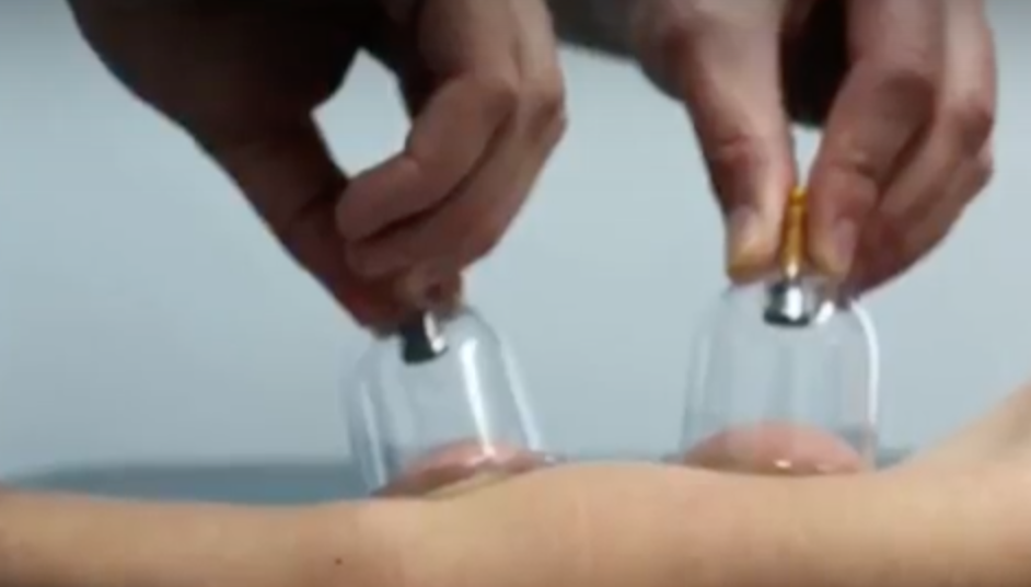 Learn how to apply cupping with dynamic movement -