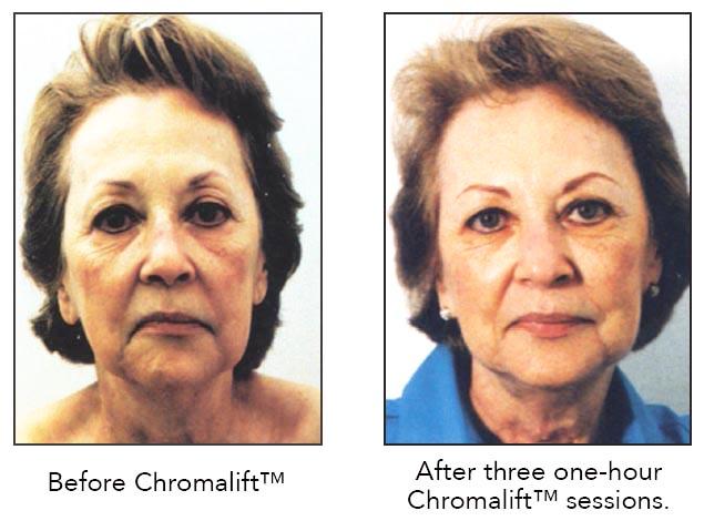 chromalift.jpg
