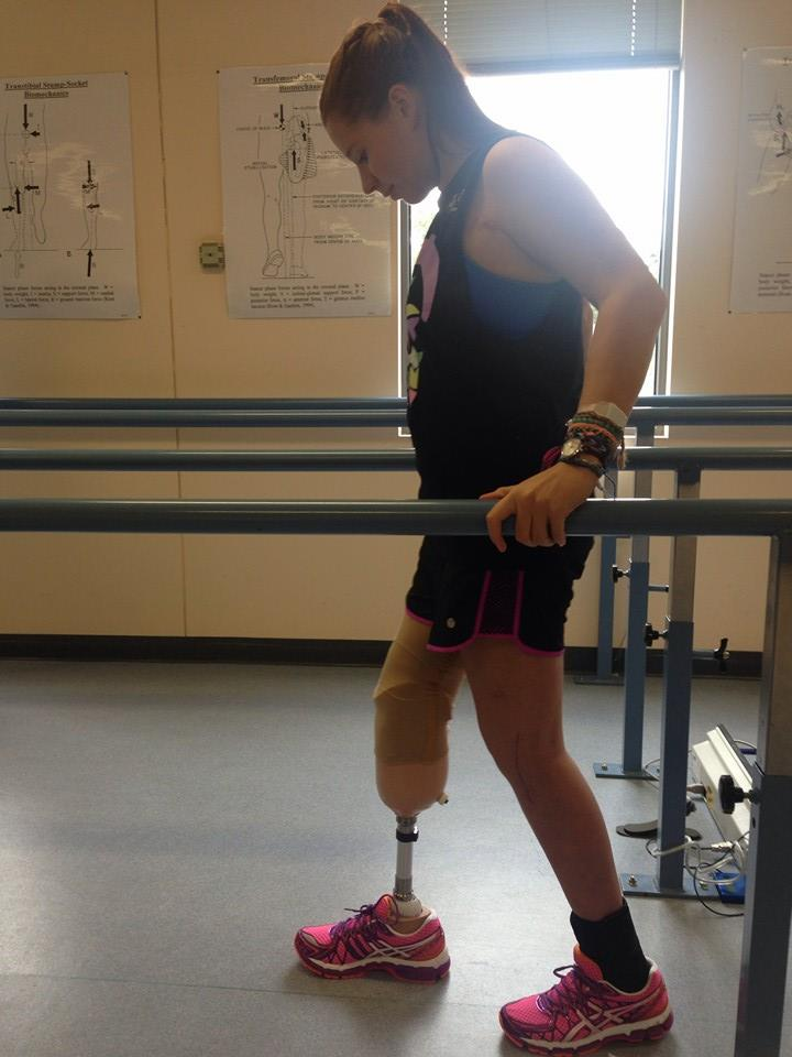 Monique taking her first steps on her first prosthetic leg in May 2014