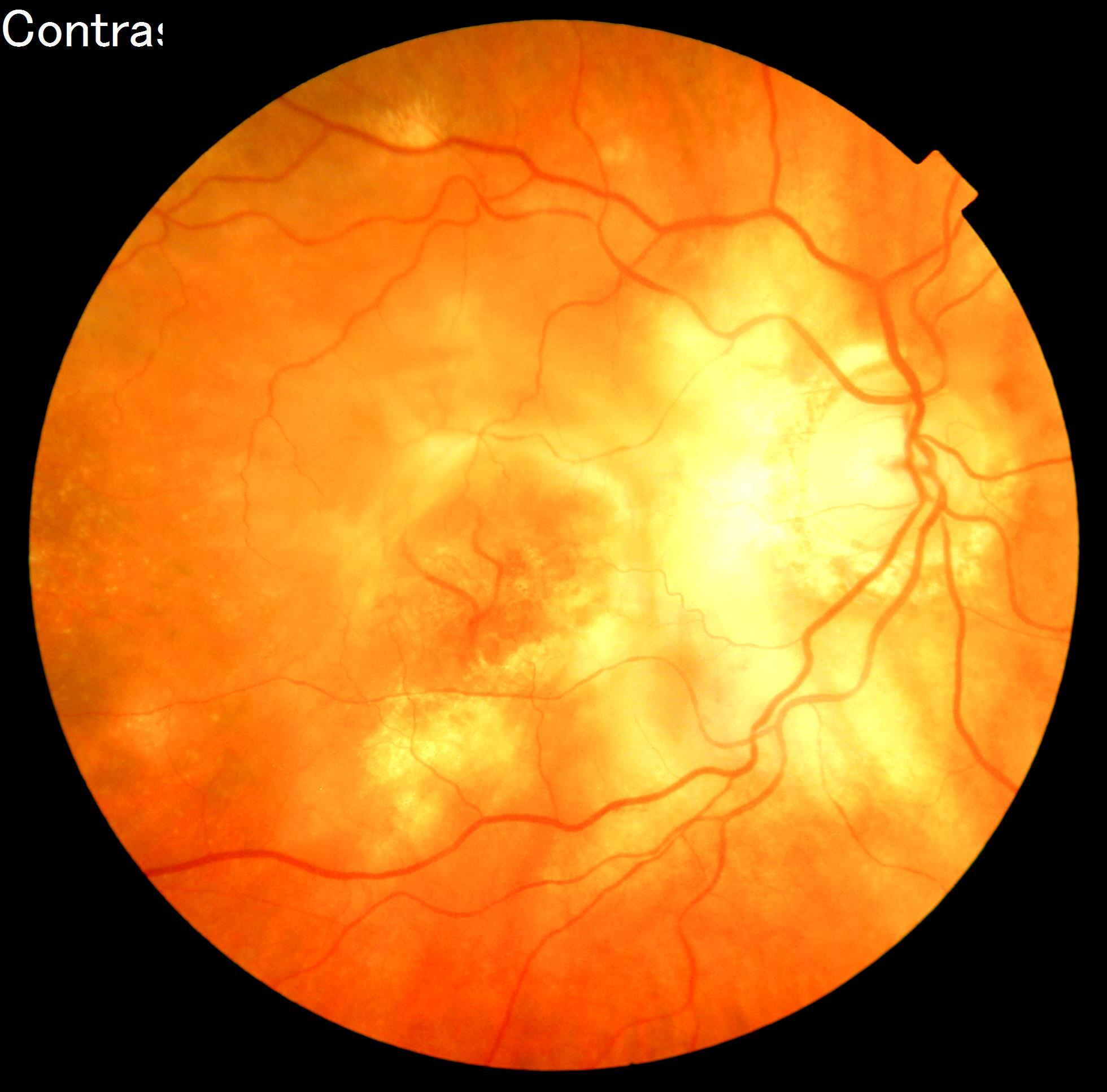 Age related Macular Degeneration-Courtsey of Gateway Ophthalmology, PLLC