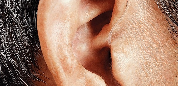 - Hearing loss isn't just an ear issue; it's a quality of life and health issue.