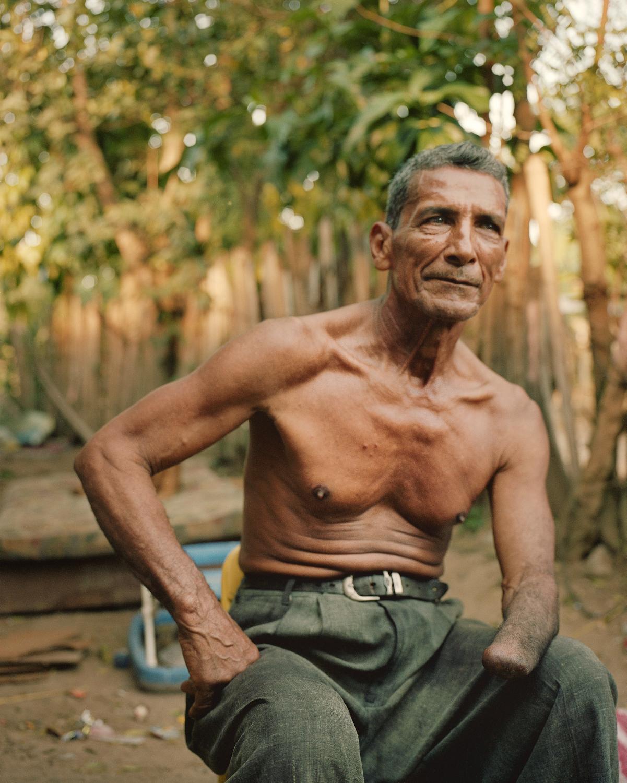 A campesino in Bajo Aguan.
