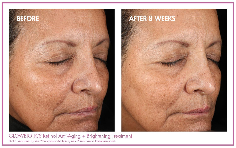 Retinol Anti-Aging + Brightening