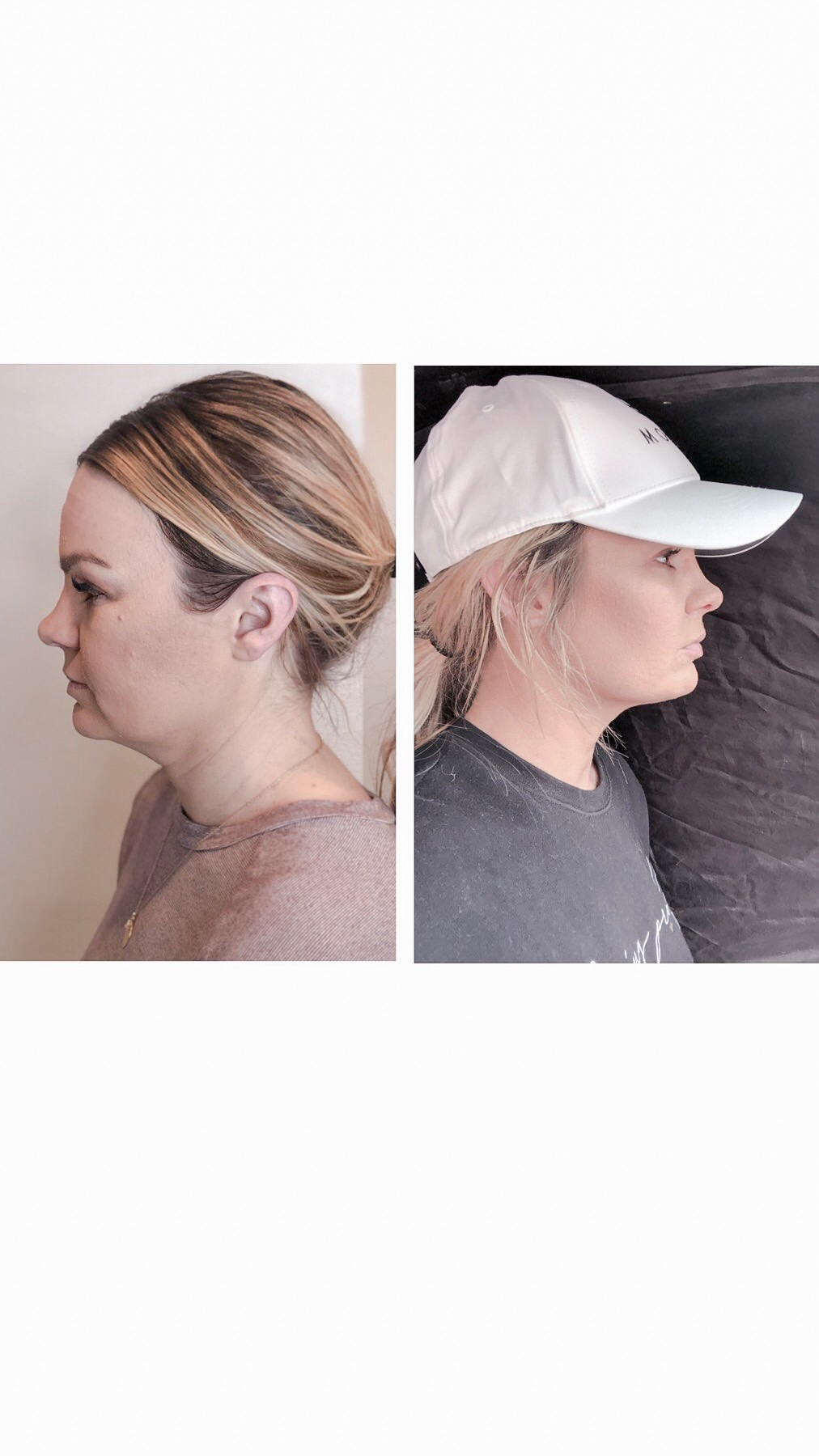 LEFT- BEFORE KYBELLA. | RIGHT- 7 WEEKS POST KYBELLA
