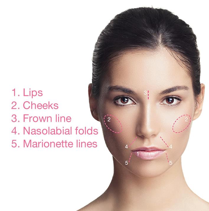 dermal-filler-treatment-areas.jpg