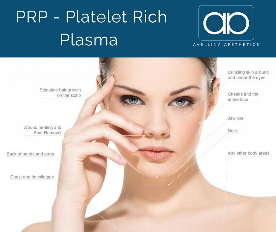 Platelet Rich Plasma Treatment Areas.png