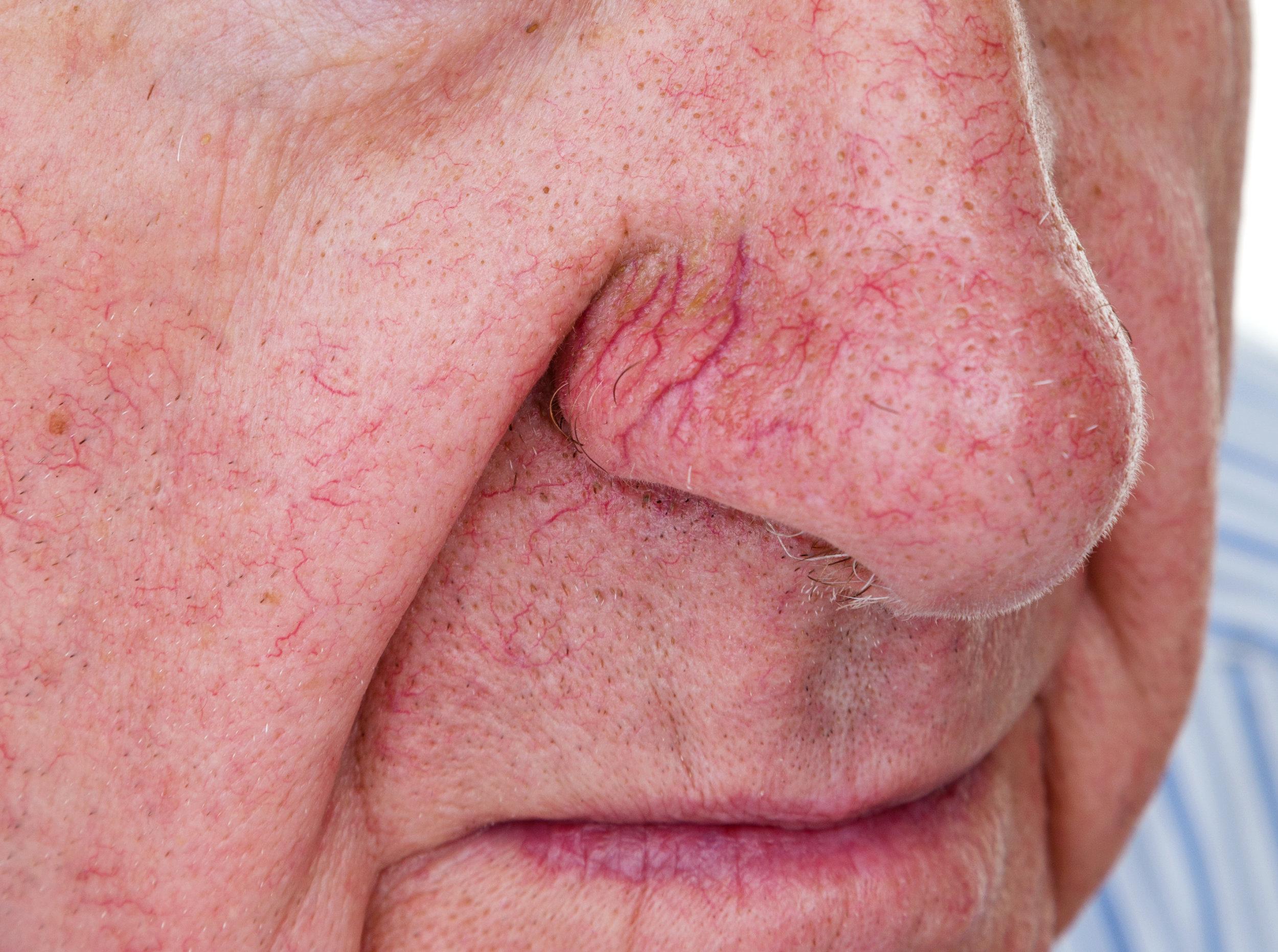 Facial Vein Rosacea Treatment Maine Laser And Aesthetics Llc