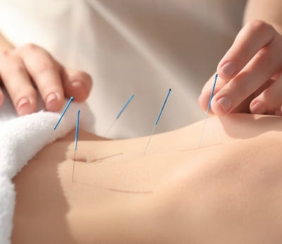 Acupuncture treament leaflet.jpg