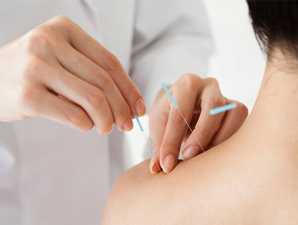 ACUPUNCTURE SHOULDER.jpg