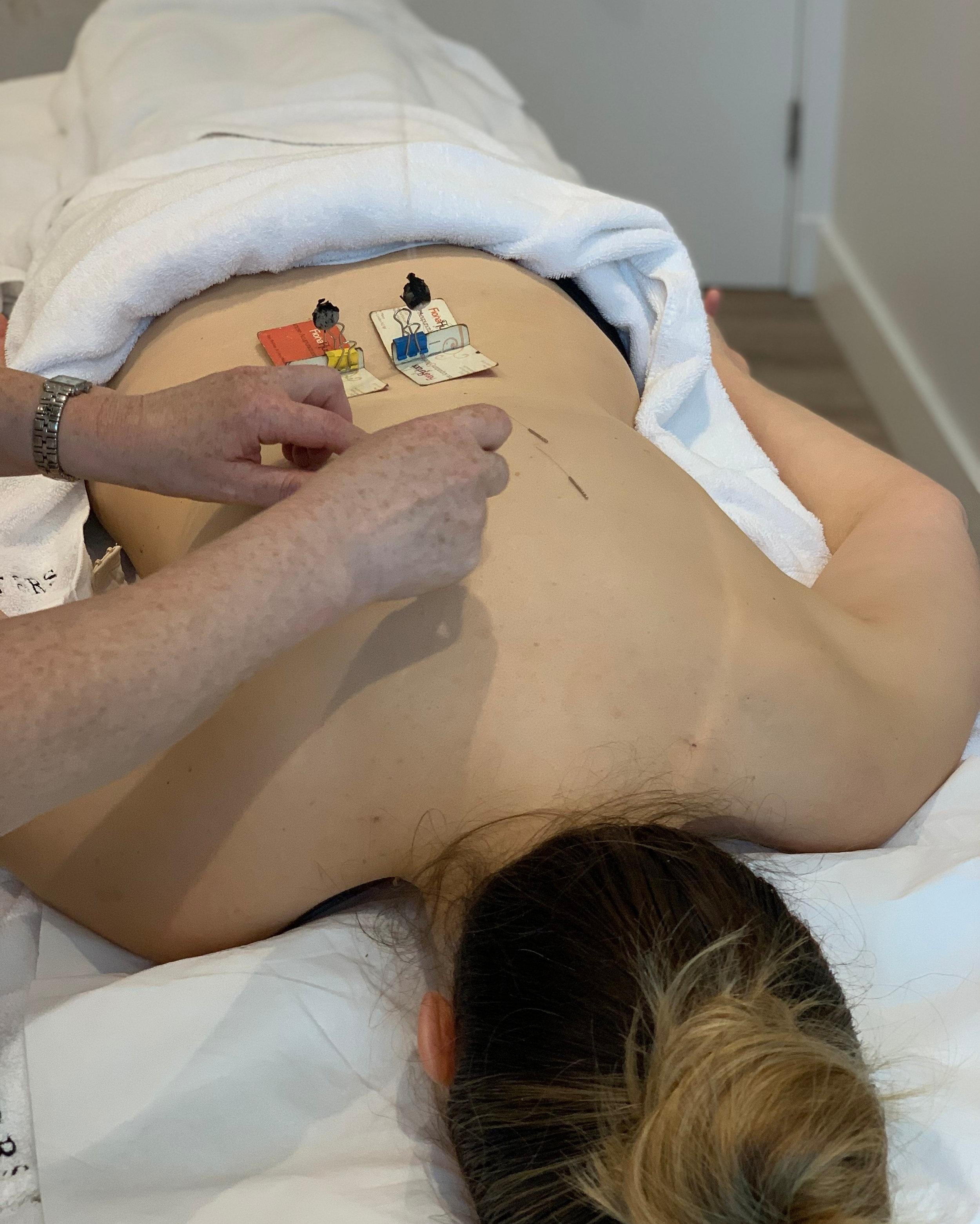 acupuncture+and+moxa.jpg
