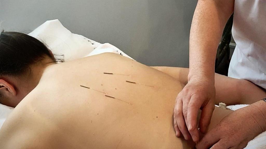 acupuncture+fiona+sept+19.jpg