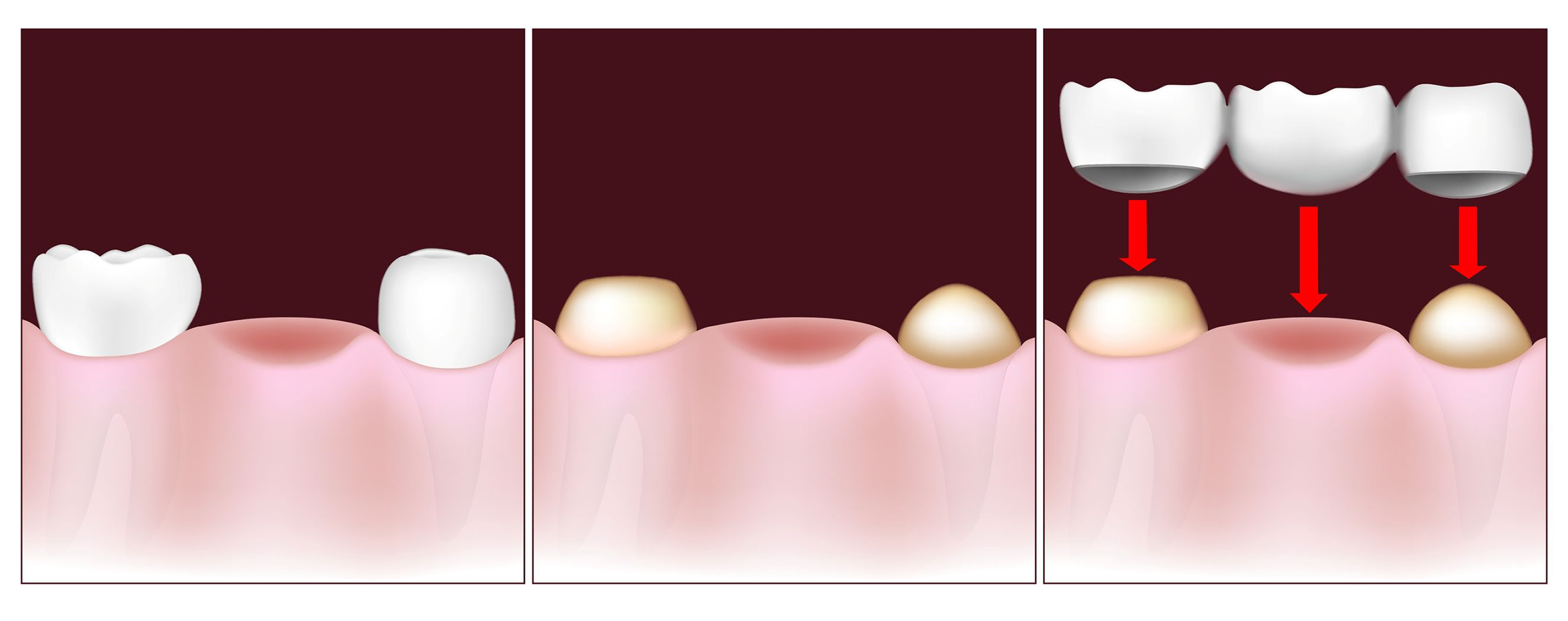 Dr. Wong can make a porcelain bridge to fill gaps in your teeth.