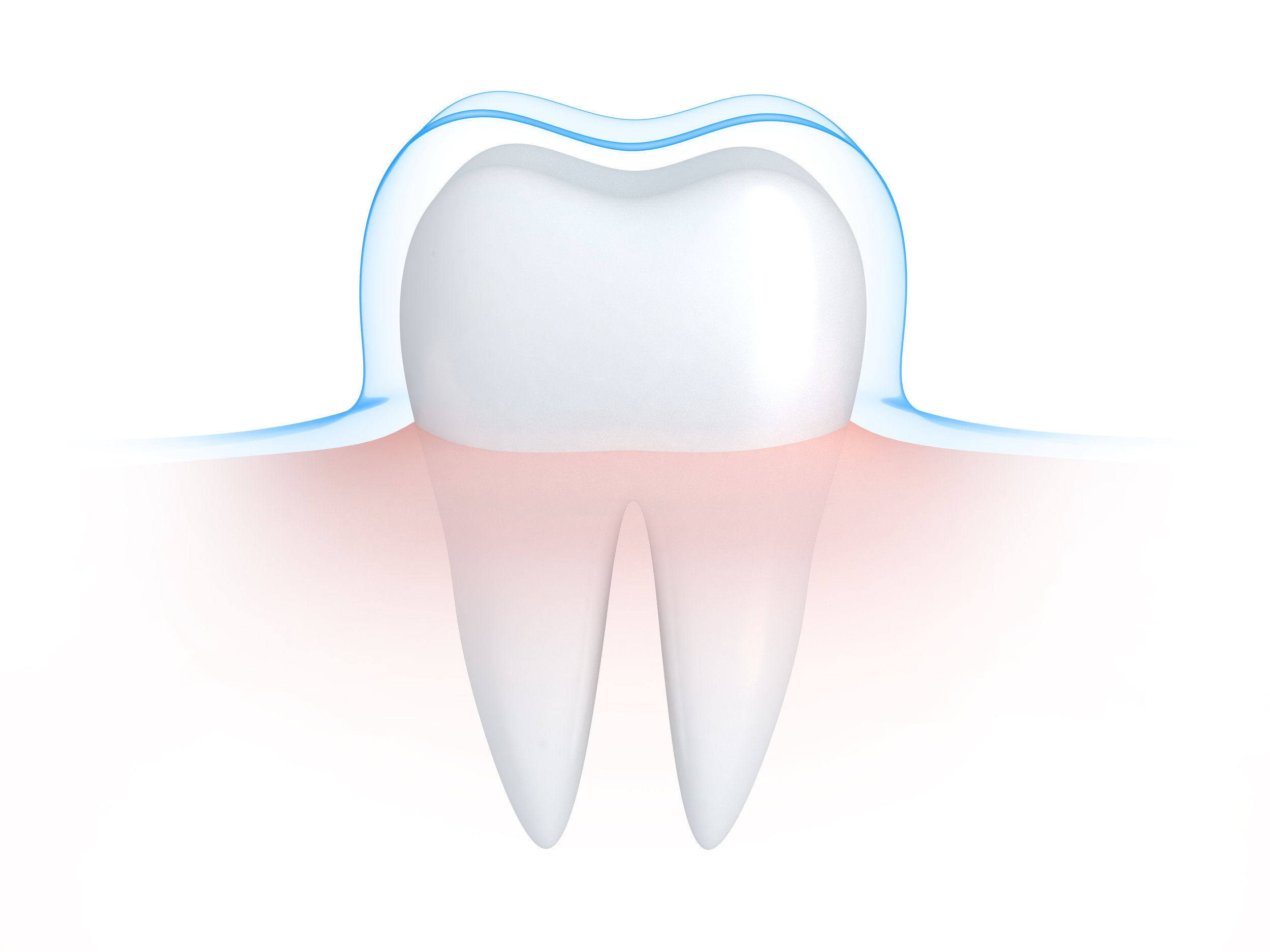 Sealants are often applied at a young age to protect teeth from cavities and decay.