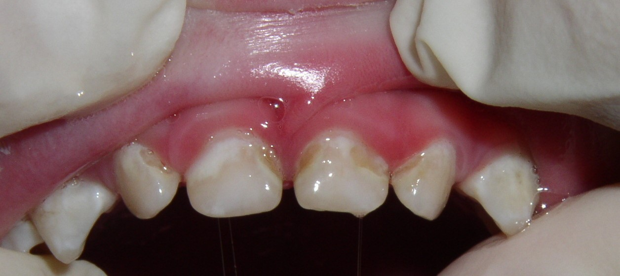 The chalky white stains are active cavities, leading to actual cavitations. THis child will need root canals and crowns to fix his teeth.