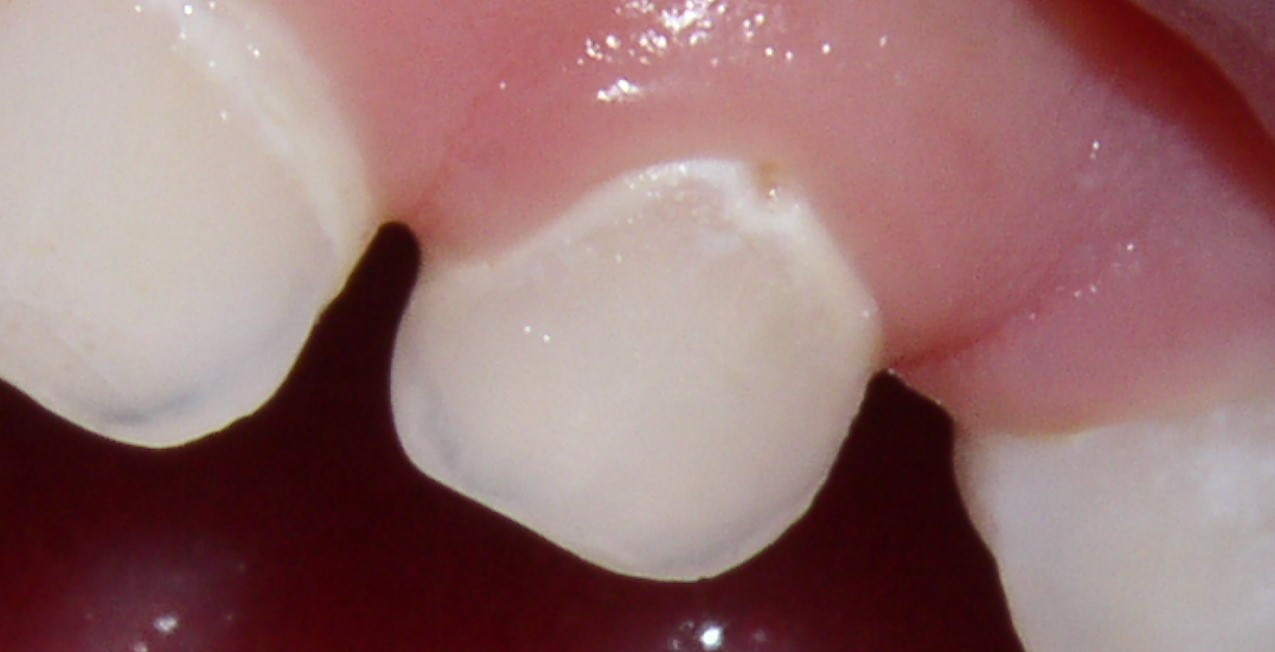 THe white line on the tooth is the beginning of a cavity
