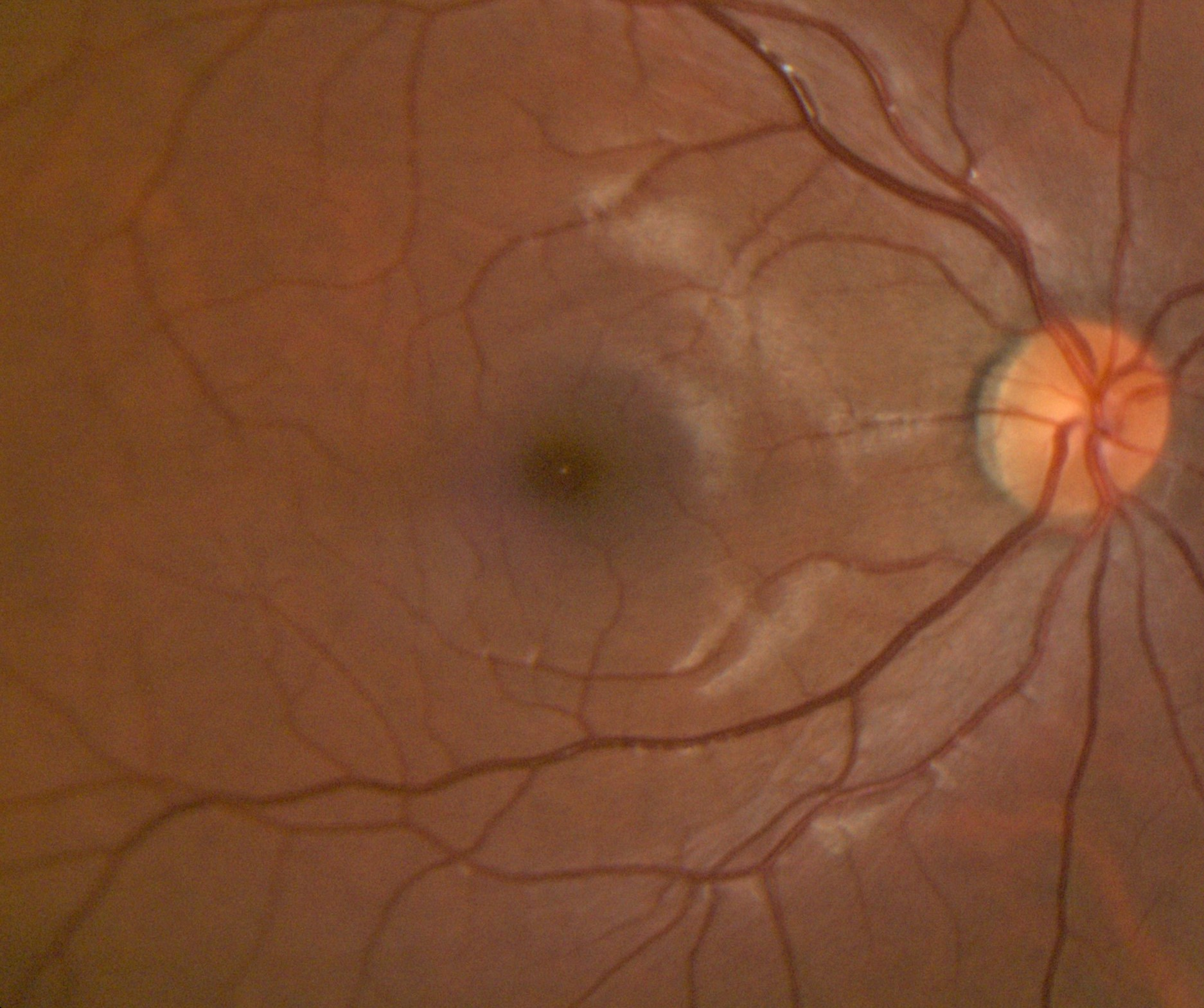 Example of Retinal Photograph