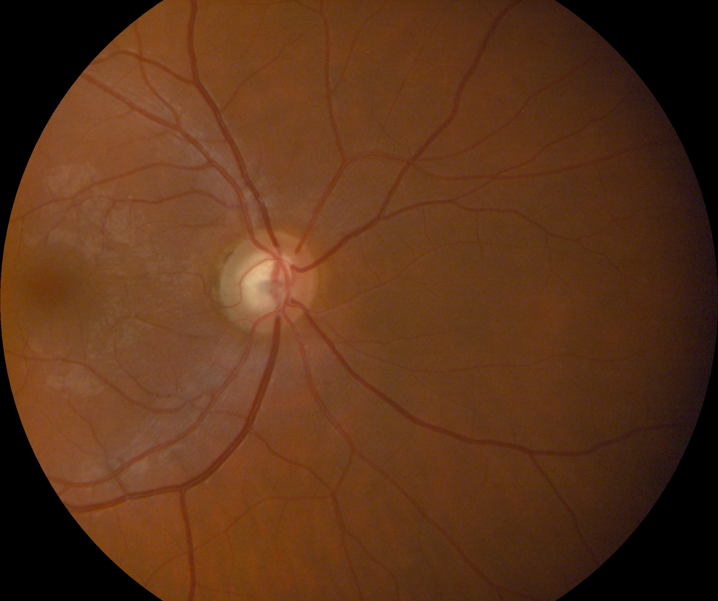 Retinal Photo Example (2).jpg