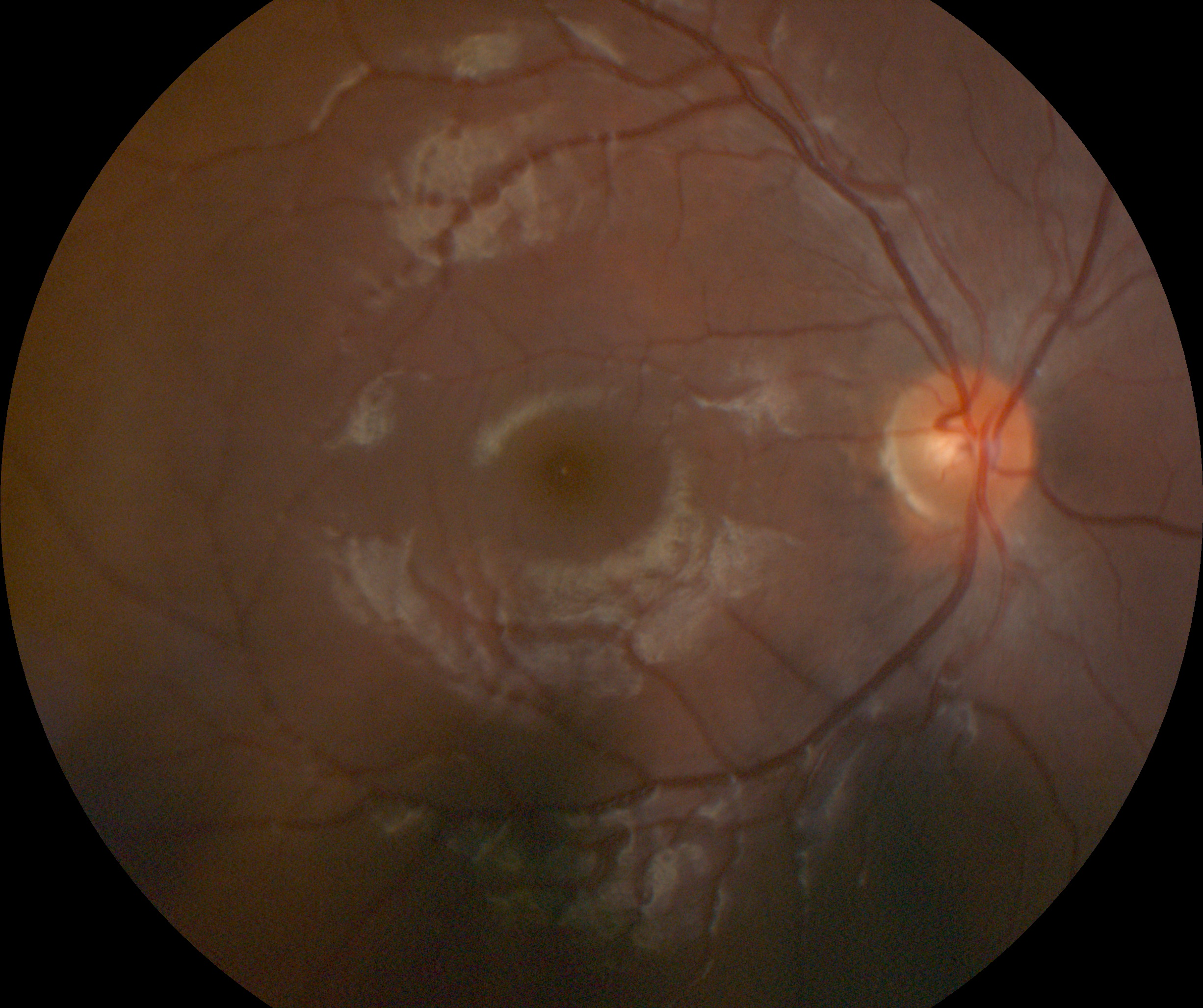 Retinal Photo Example (1).jpg