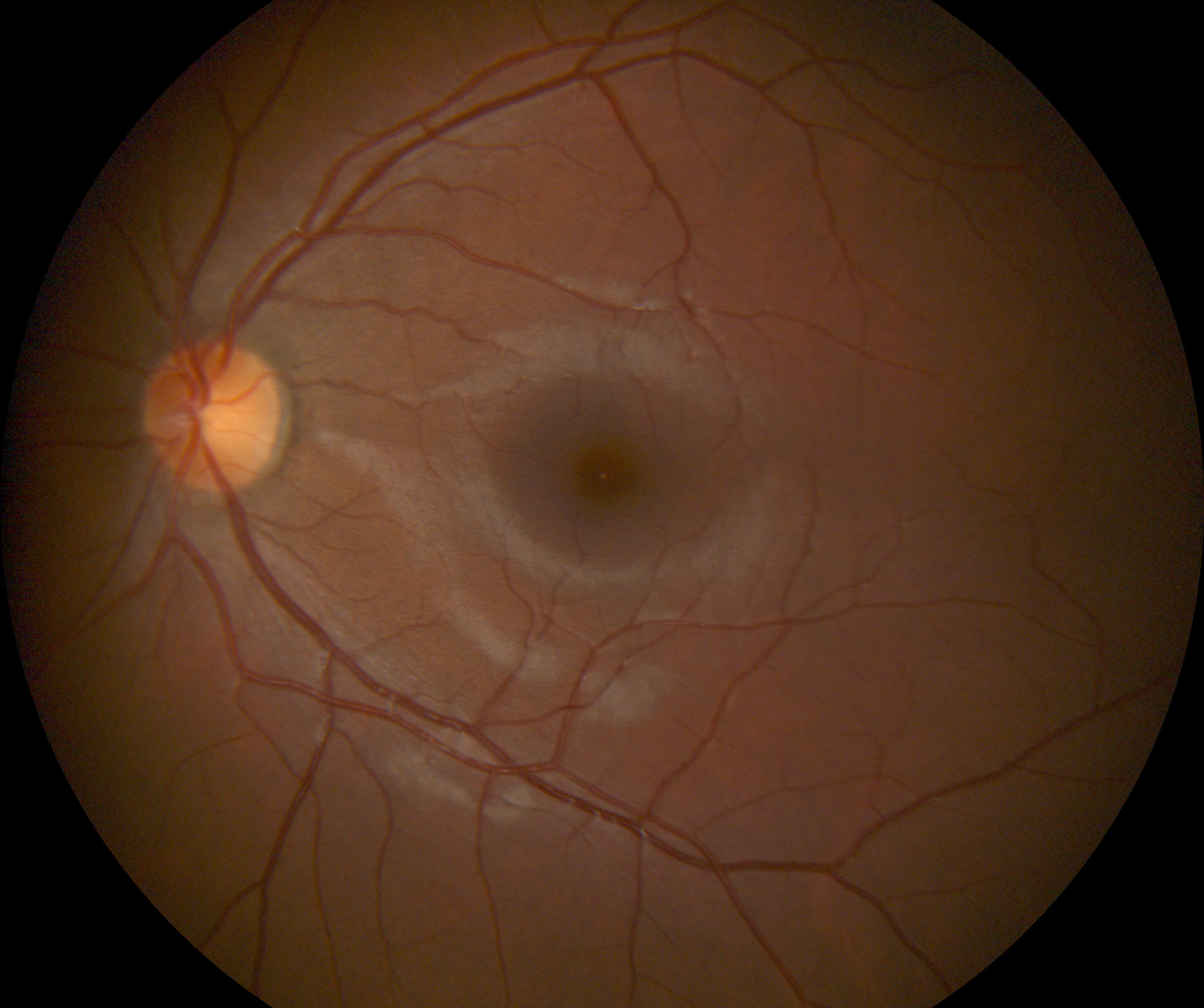 Retinal Photo Example (3).jpg