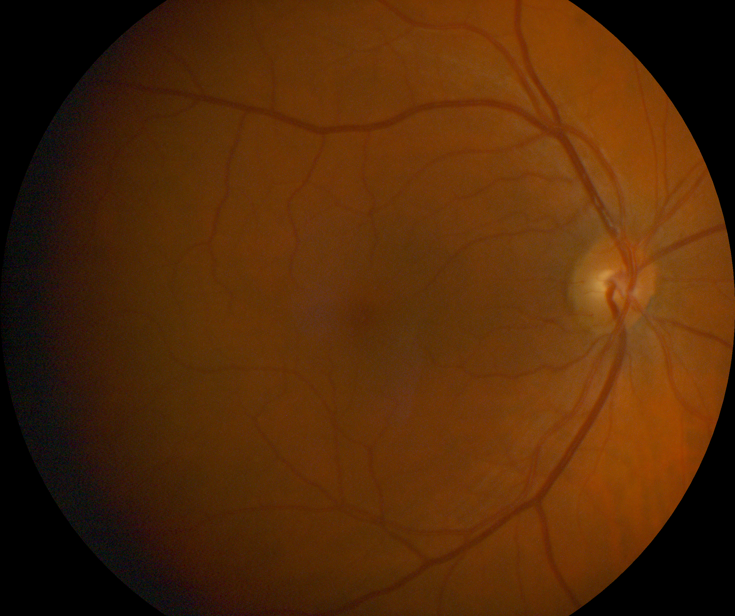 Retinal Photo Example (3).png