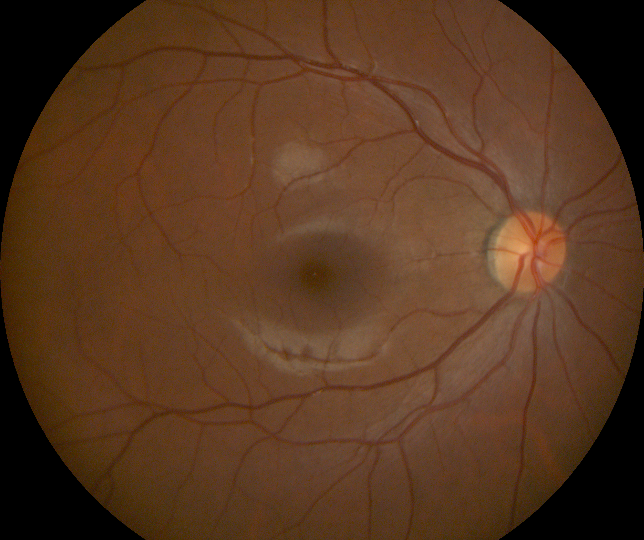 Retinal Photo Example (4).png