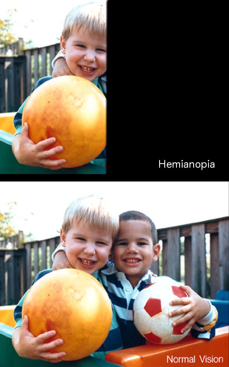 Hemianopia.png