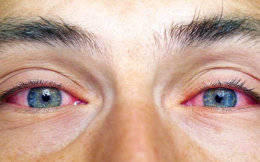 We treat many eye conditions - red eyes, infections, injuries, and more