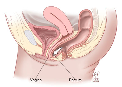 Rectocele (posterior vaginal wall prolapse)