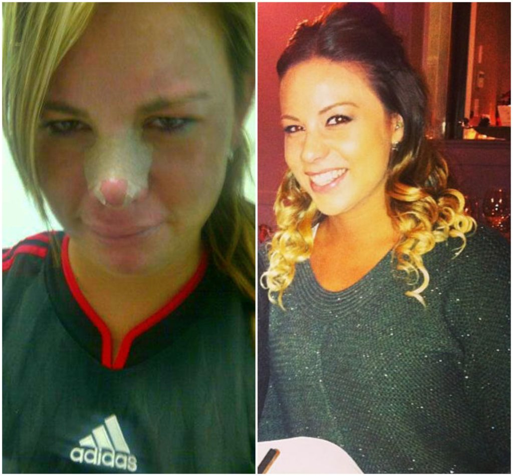 before drunk with a broken nose and after at 6 months sober