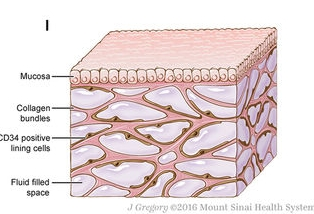 Schematic of the fluid-filled space supported by a network of collagen bundles lined on one side with cells. Illustration by Jill Gregory. -