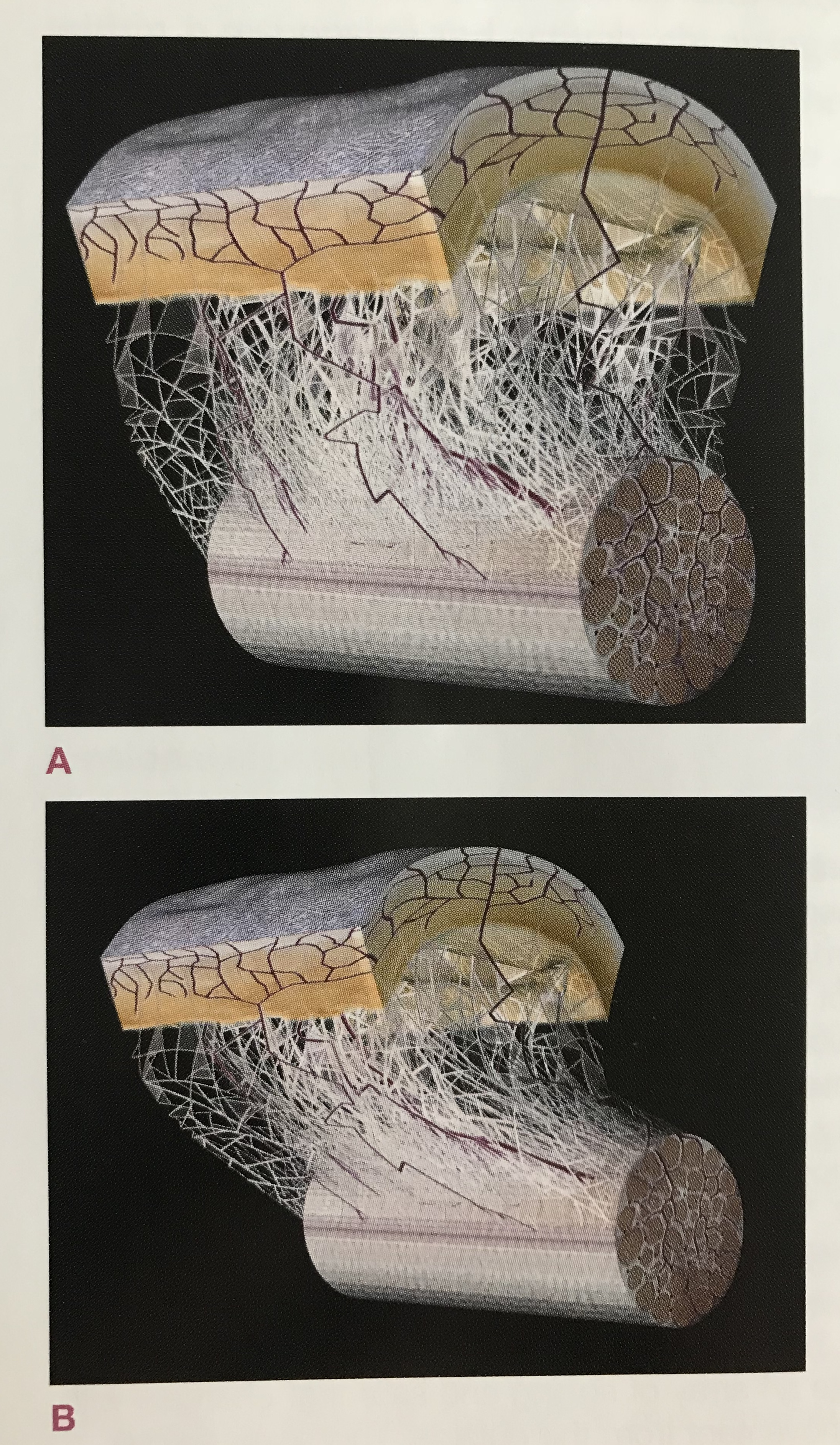 Image taken from the book, Anatomy Trains by Thomas Meyers. Originally from Dr. J. C. Guimberteau. A diagram of the microvacuole sliding system between the skin and the underlying tendons. -