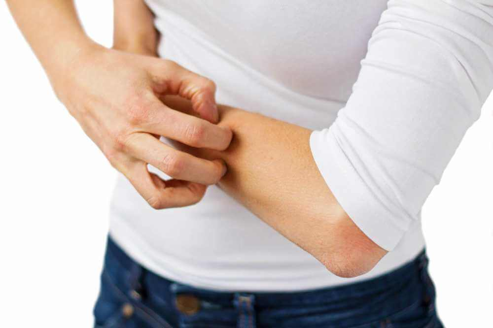 Eczema treatment in San Diego at California Dermatology Clinical Research Center.