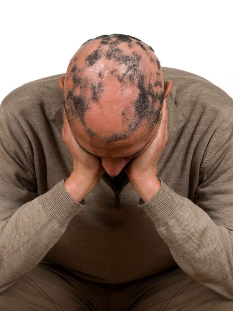 Alopecia Areata treatment at CDCRI San Diego.