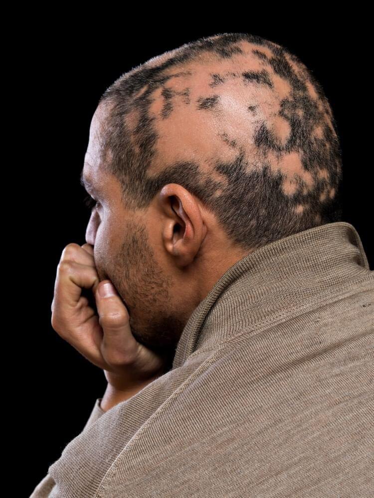 types of treatment for Alopecia Areata.