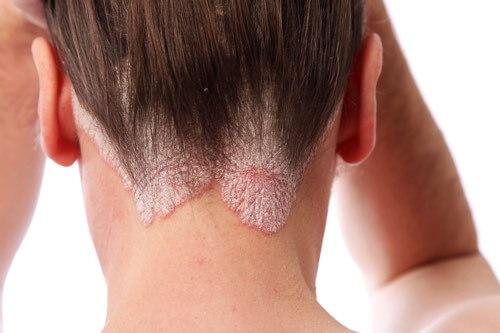 scalp psoriasis treatment and causes of scalp psoriasis.