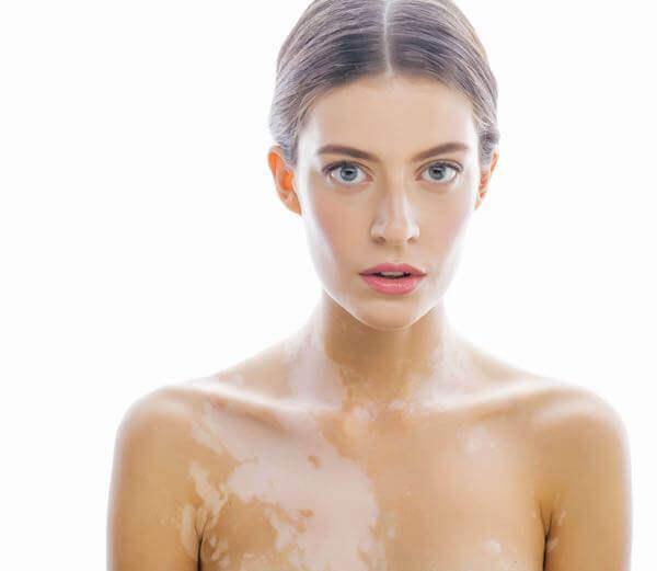 Symptoms of Vitiligo.