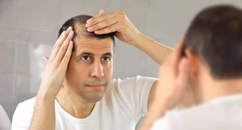 Living with Alopecia areata