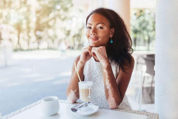 Vitiligo Frequently Asked Questions San Diego.