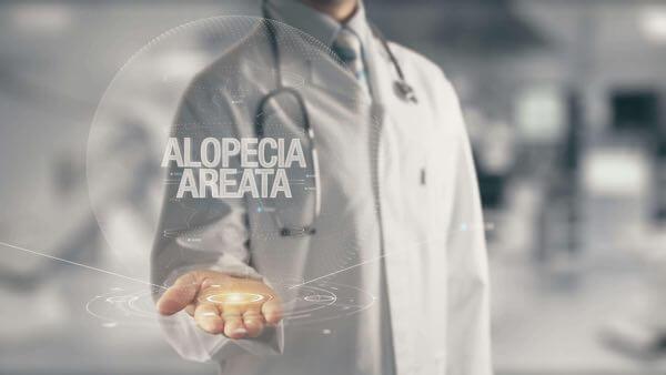 Alopecia Areata diagnosis in San Diego.