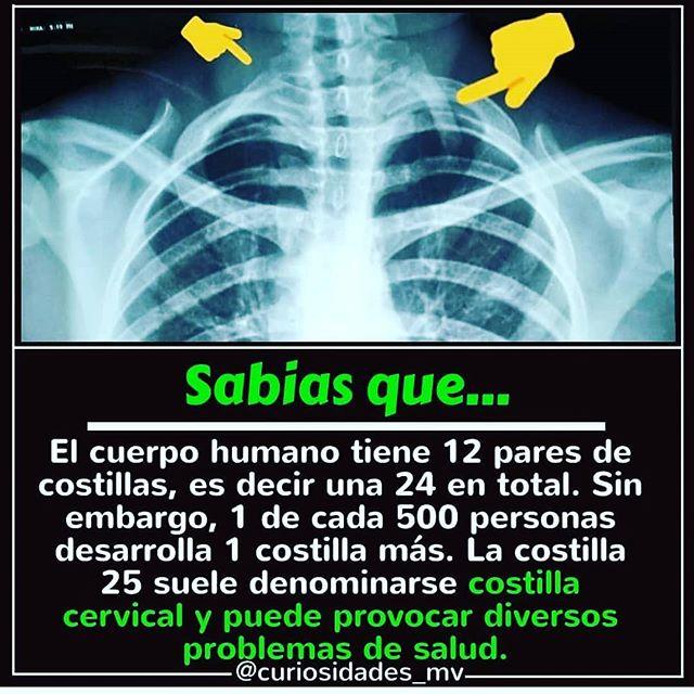 También conocida como supernumeraria. El problema radica en la compresión vascular o linfática que genera llegando a producir síntomas asociados, al mismo tiempo y sin necesidad de ser el 0,20% que lo sufren, se pueden desarrollar por un desequilibrio en la alineación de la columna vertebral los siguientes síntomas: - Dolor de cabeza - Mareos - Congestión de vías respiratorias - Dolor muscular o sobrecarga - Dolor neural - Adormecimiento o parestesias - Limitaciones en la movilidad  Si tienes alguno de estos síntomas, es importante hacer una revisión osteopostural con tratamiento manual para resolver y evitar problemas futuros.  #fisioterapia #osteopatia #medicina física #rehabilitacion #kinesiologia #salud #deporte #cuidadopersonal #rpg #meziers #deportistasprofesionales #escoliosis #espalda sana #dr #dra #equipomultidisciplinar