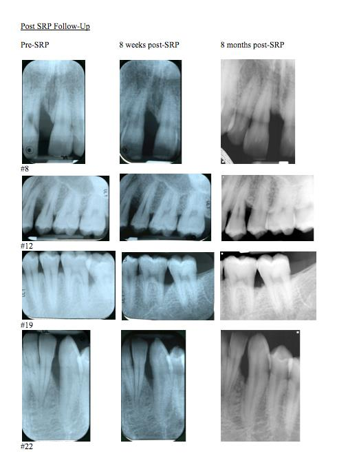 Scaling Root and Planing   Scalling Root and Planing, commonly called deep cleaning, is beneficial for oral hygiene and increases the likelihood of bone growing back after it has been lost, as seen in the pictures above.